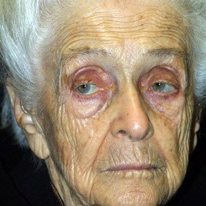 Rita Levi-Montalcini Death Cause and Date